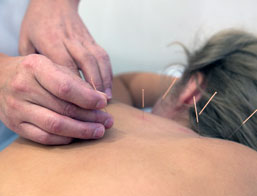 our services accupuncture