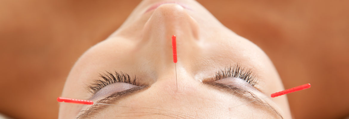 Banner-Acupuncture-05.jpg