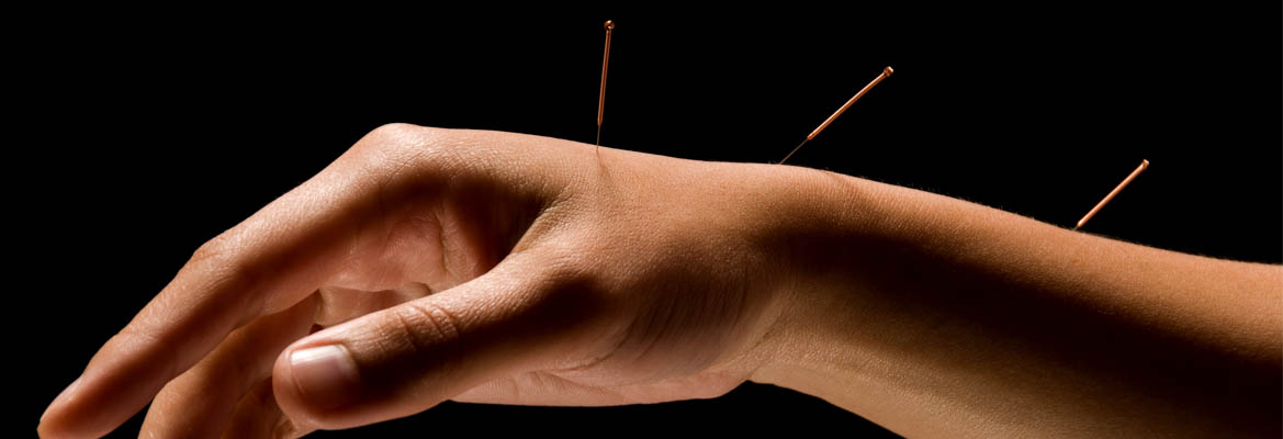 Banner-Acupuncture-06.jpg